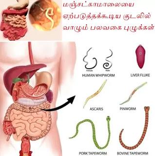 jaundice worms