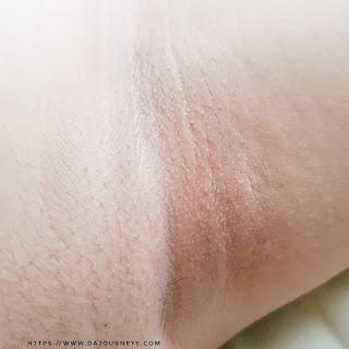 Cara Mencerahkan Ketiak dengan Roceo Lightening and Smoothing Underarm Serum