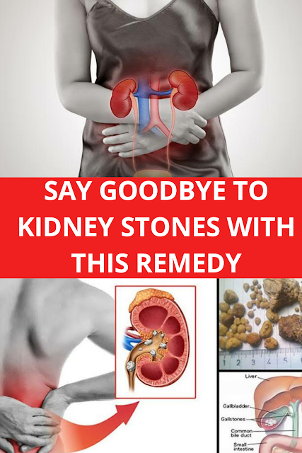 Say Goodbye To Kidney Stones With This Remedy