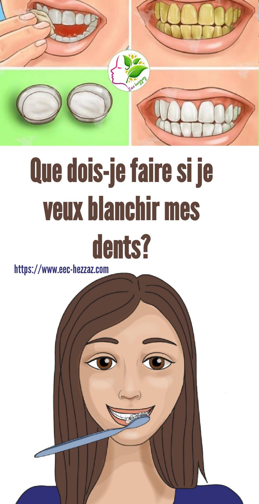 Que dois-je faire si je veux blanchir mes dents?