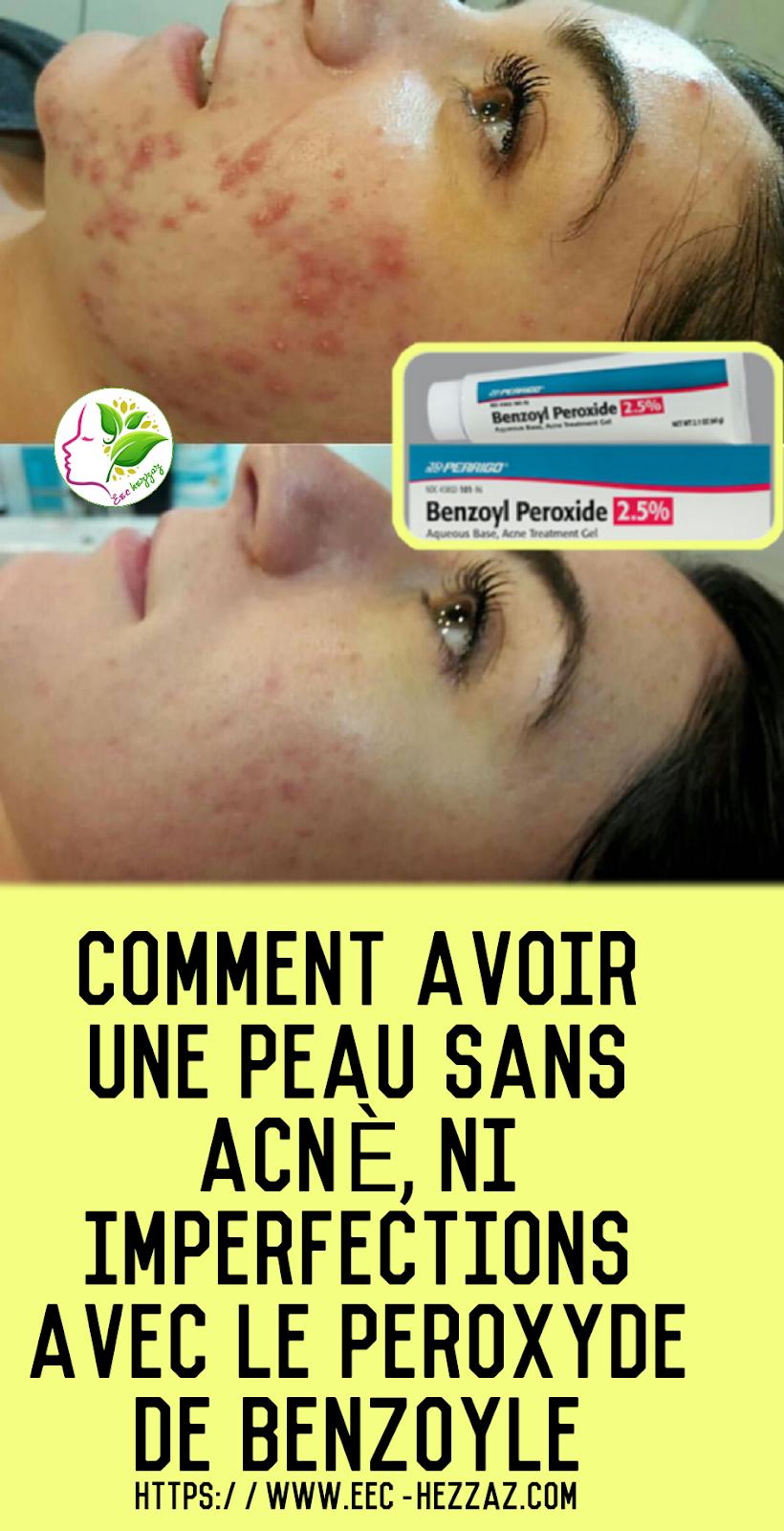 Comment avoir une peau sans acné, ni imperfections avec le peroxyde de benzoyle