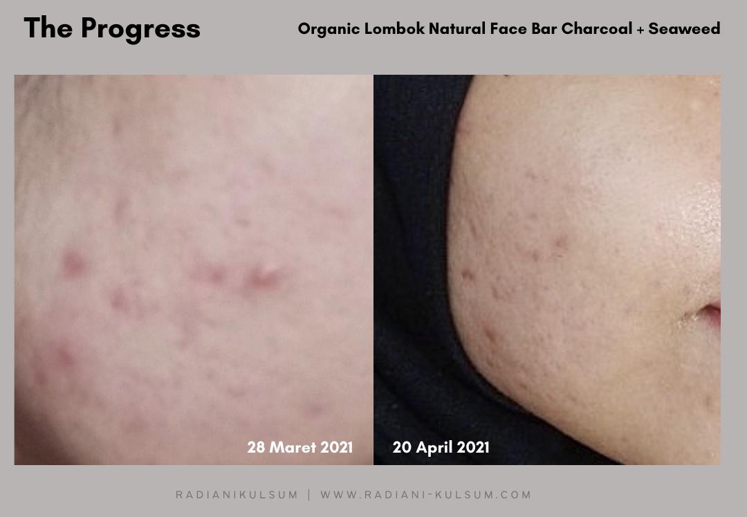 Organic Lombok Spirusea Natural Face Bar Charcoal + Seaweed, Skincare Alami Anti Jerawat