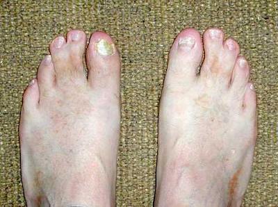 Gambar  . Kaki penderita webbed toes