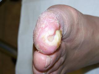 Diabetespatienten mit Mal Perforans vor Magnetfeldtherapie