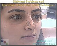 rhinoplasty techniques,bone broken in nose aesthetic operation,surgical technique for nose reshaping,