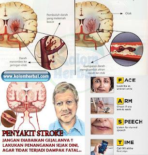 Cara Mengobati Penyakit Stroke