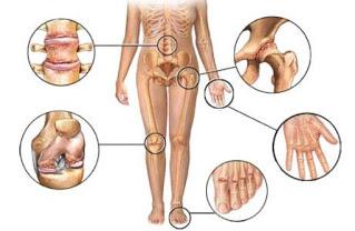 Penyebab Dan Gejala Artritis