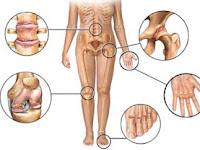 Penyebab Dan Gejala Arthritis (Peradangan)
