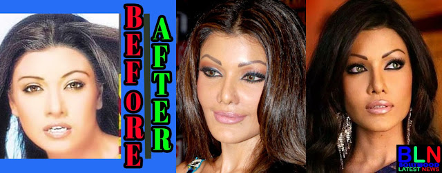 KORNA MITRA Bollywood Actresses Before and After Plastic Surgery