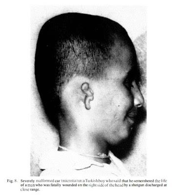 Menino com mal formação na face, marcas de nascença, devido a influência de uma vida passada