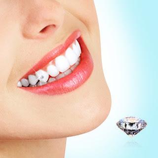Đính kim cương vào răng