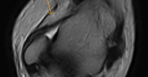 Anterolateral Ankle Impingement Mri Sumer S Radiology Blog