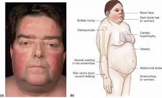 cushing sendromu genel belirtileri değişiklikler