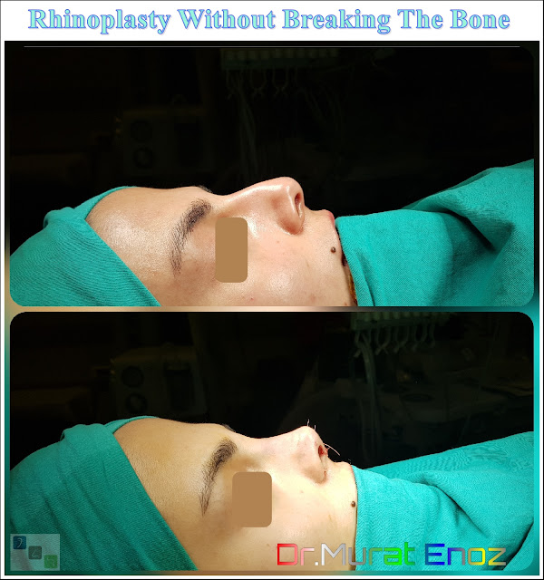 Nose Job Without Toching The Bone in Istanbul,Rhinoplasty without breaking the bone,