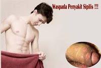 Obat Sipilis Yang Ampuh Untuk Kelamin Pria
