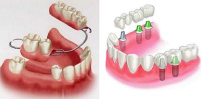 có nên cắm ghép răng implant không -6