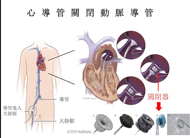 心導管關閉動脈導管