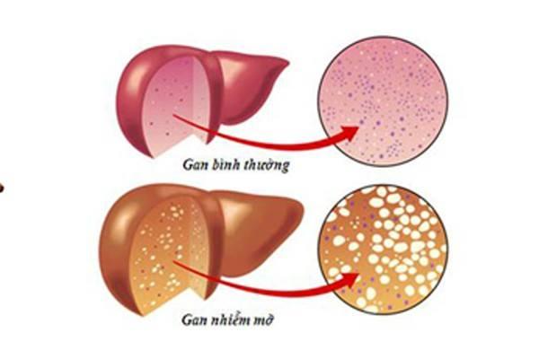 Giảm béo quá nhanh có thể dẫn đến gan nhiễm mỡ