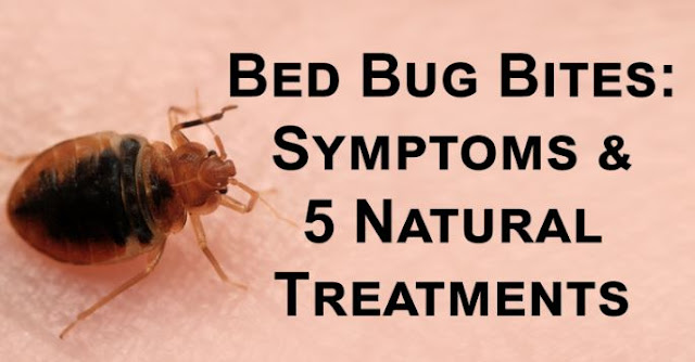 Bed Bug Bites: Symptoms and Treatments Home remedies