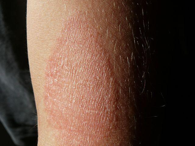 Eczema, Symptoms of Eczema and types of Eczema