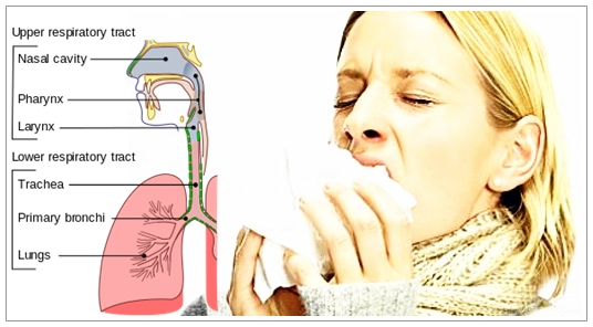 Cara Mengobati Infeksi Saluran Pernafasan Atas Paling Mujarab