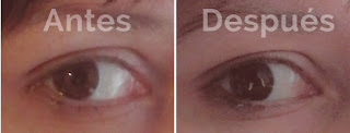 eye lifting formula antes y despues