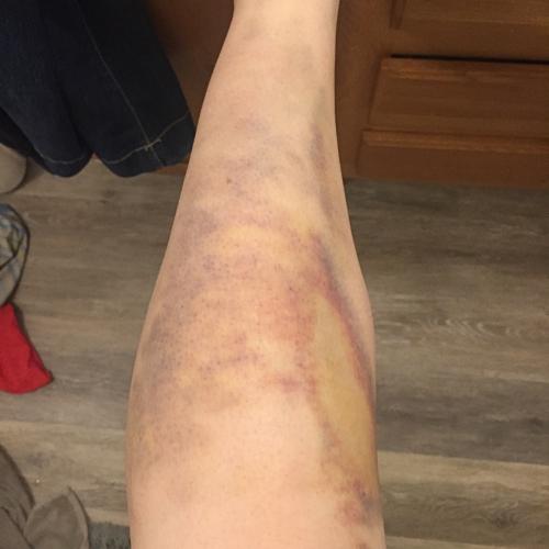 biggest bruise ever