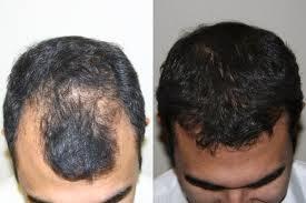 saç ekimi sonrası foto