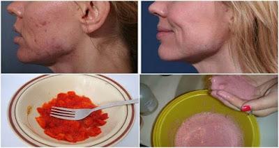 Rejuvenece tu rostro y el cabello con estas mascarillas de fresas