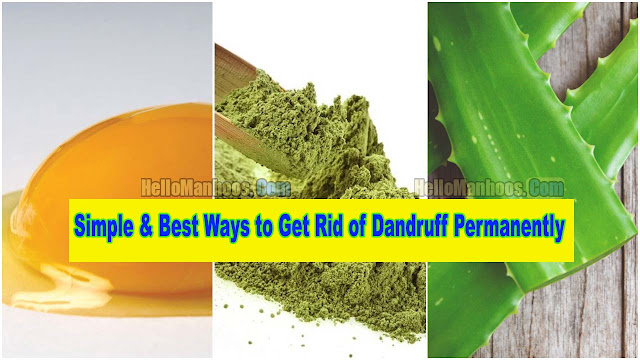 10 Simple & Best Ways to Get Rid of Dandruff Permanently