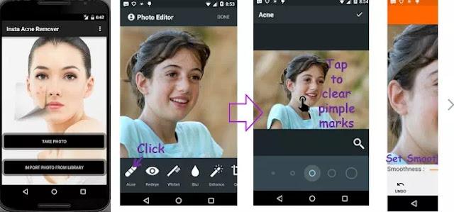 Aplikasi penghilang jerawat di Android-3