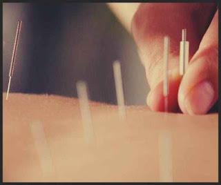 acupunctura efecte ciudate care nu sunt efecte adverse