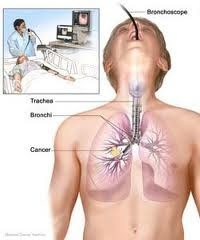 What is the Option Mesothelioma Treatment?  Know Here...