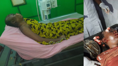 22-Year-Old Lady R*ped And Beaten To Coma, Inside RCCG Church In Benin (Viewers Discretion)
