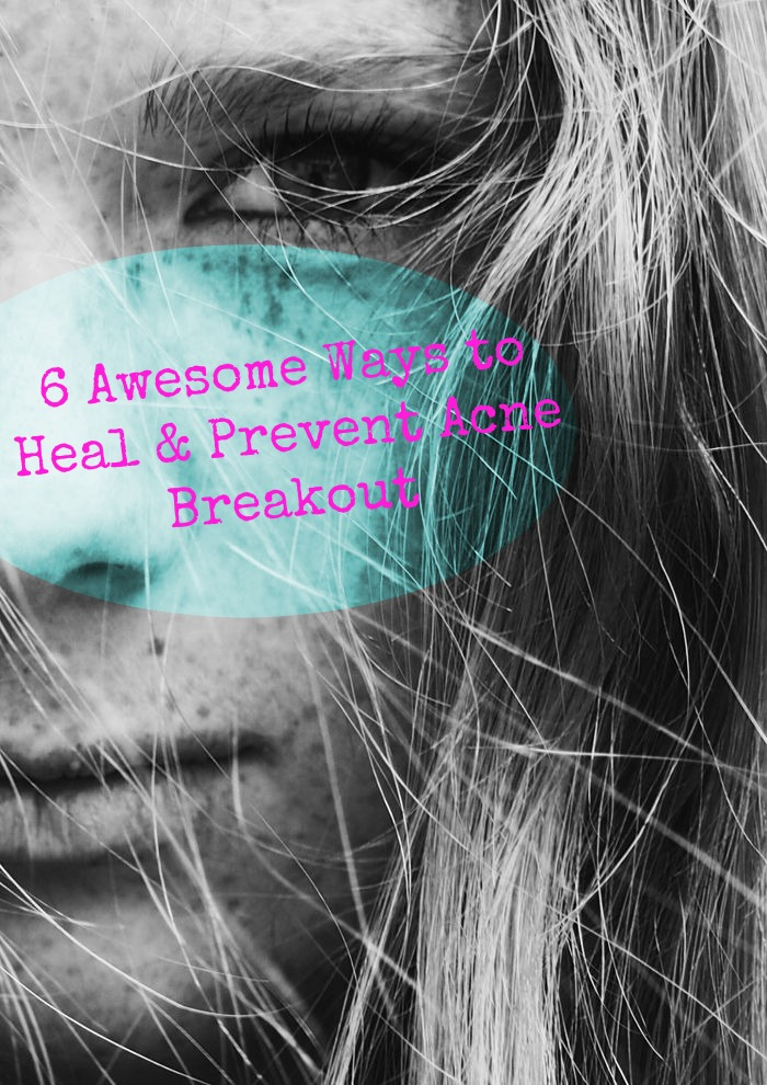 6 Awesome Ways to Prevent and Heal Acne Breakouts