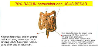 kondisi-usus-manusia