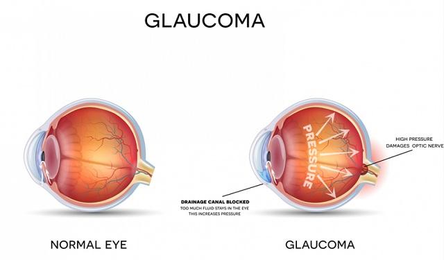 Glaukoma Si Pencuri Penglihatan, Pengertian dan Penyebab Terjadinya