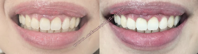 before and after photo of The Smile Bar Triple Whitening askmewhats