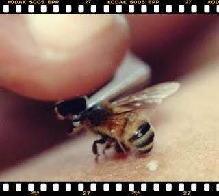 sfaturi remedii naturale din casa pentru intepatura de albine