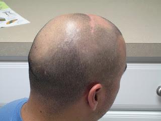 اسباب تساقط الشعر, أسباب الصلع,