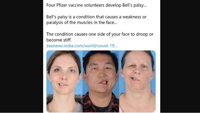 4 Orang Alami Kelumpuhan Wajah Setelah Disuntik Vaksin Corona
