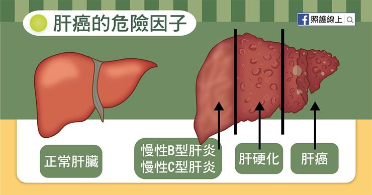 肝癌的危險因子