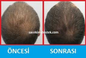saç mezoterapisi öncesi ve sonrası 27