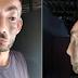 Jovem natural do Vale do Piancó vive drama para conseguir cirurgia estética e retirada de tumor benigno no rosto
