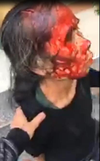 Biến căng đét Phù Ninh Phú Thọ Con rể chém mẹ vợ rách đầu :(