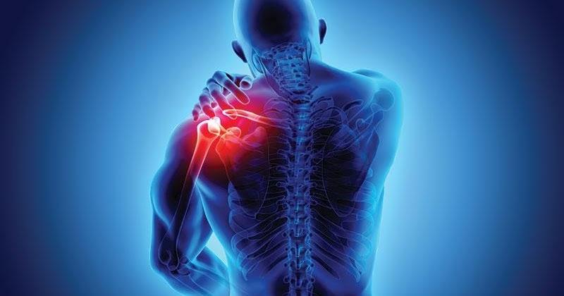 Conozca más sobre la osteoartritis del hombro: diagnóstico y tratamientos 83