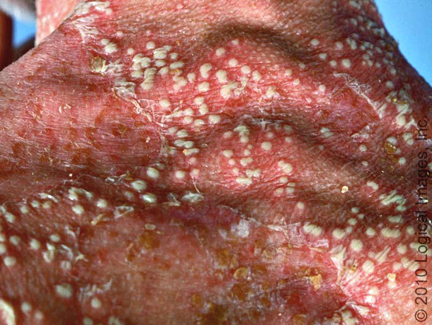 Signs And Symptoms Of Acne Rosacea Voeding