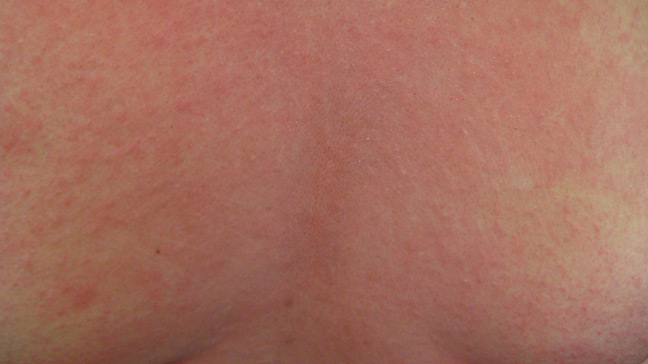 Baby Acne Cure and Treatment: Baby Heat Rash Pictures