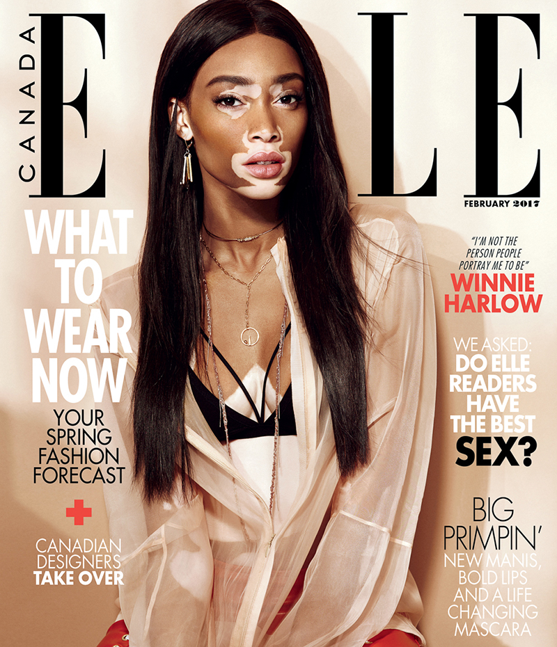 Winnie Harlow Stars in Elle Canada February 2017 Cover