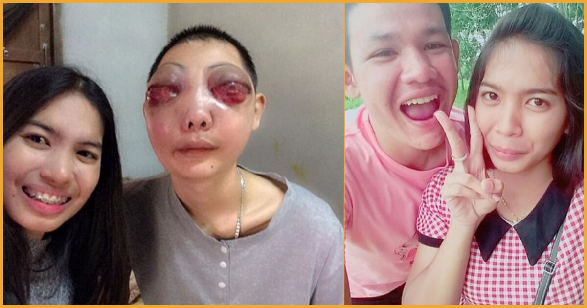 Terminal Eye Cancer Patient's Girlfriend Proves That Love Knows No Limits